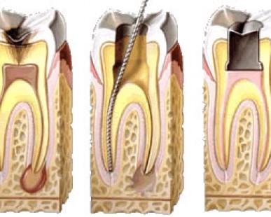 Imagenes de Galería de Conceptos Dentales